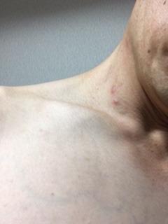 2month-neck.JPG
